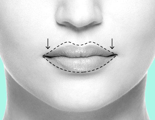 Plastinės lūpų didinimo operacijos