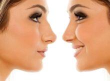 nosies-korekcija